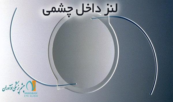 لنزهای داخل چشمی در عمل کاشت لنز