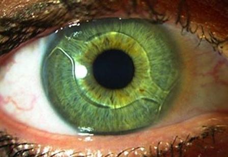 رینگ داخل چشمی برای درمان قوز قرنیه