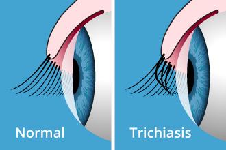 trichiasis-330x220