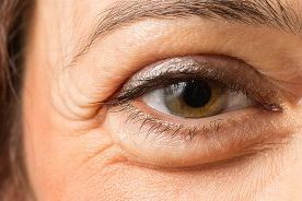 puffy-eye-1200x630-1-e1538452695185_993ac260741919a68094971d0fcbecdc