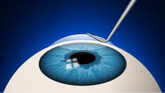 عمل لازیک چشم