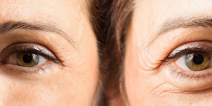 بلفاروپلاستی - عمل پف زیر چشم