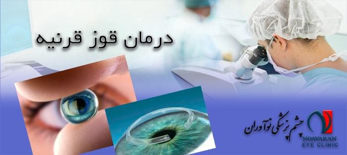 درمان قوزقرنیه یا کراتوکونوس