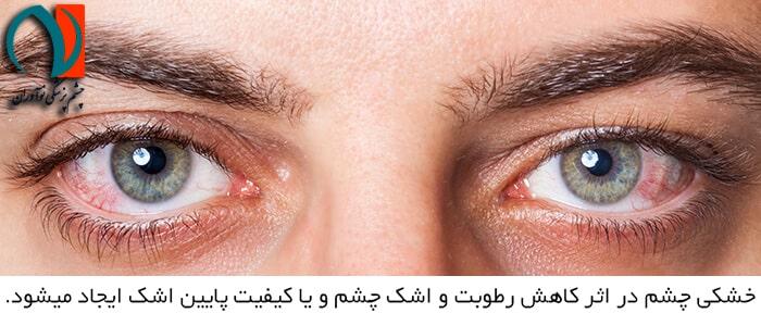 دلایل ایجاد خشکی چشم